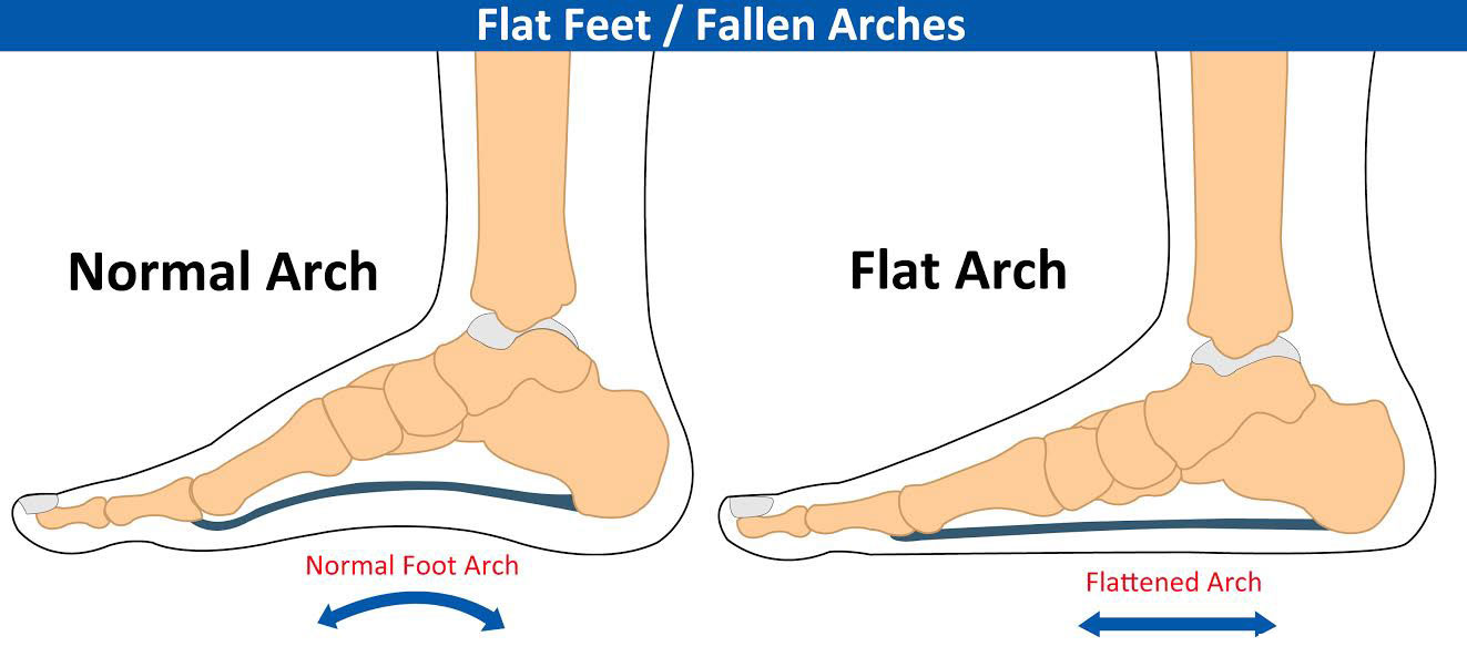 flat-arch-foot